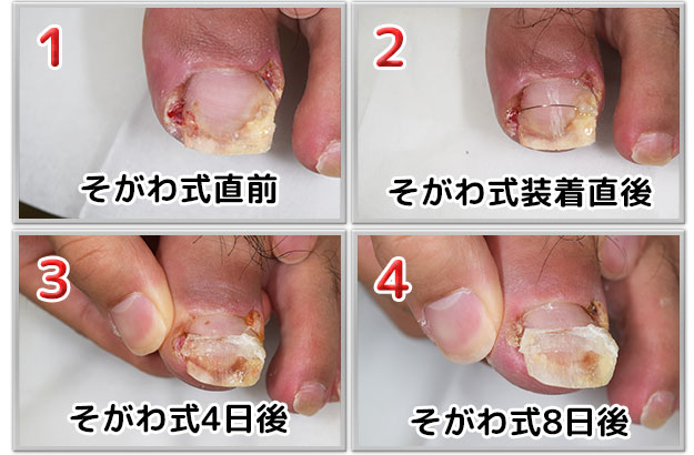 なぜ足の小指の爪は突如として消えるのか ...